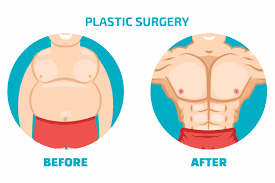 gynaecomastia surgery in bangalore