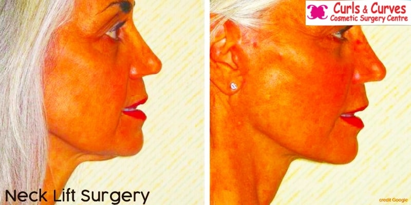 cosmetic neck surgery