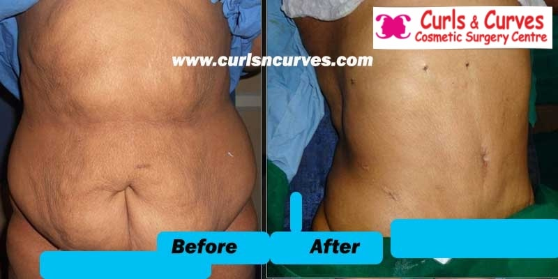 belly fat removal surgery