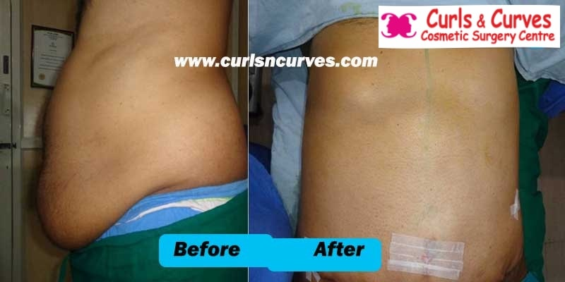 stomach fat removal in bangalore