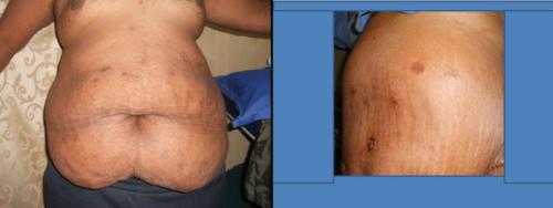 Post Bariatric Surgery Image1