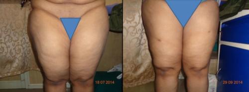 thigh fat surgery in bangalore