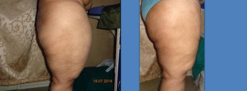 thigh fat removal surgery