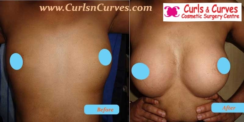 breast augmentation surgery price