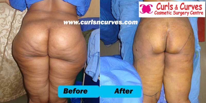 gluteoplasty surgery in bangalore