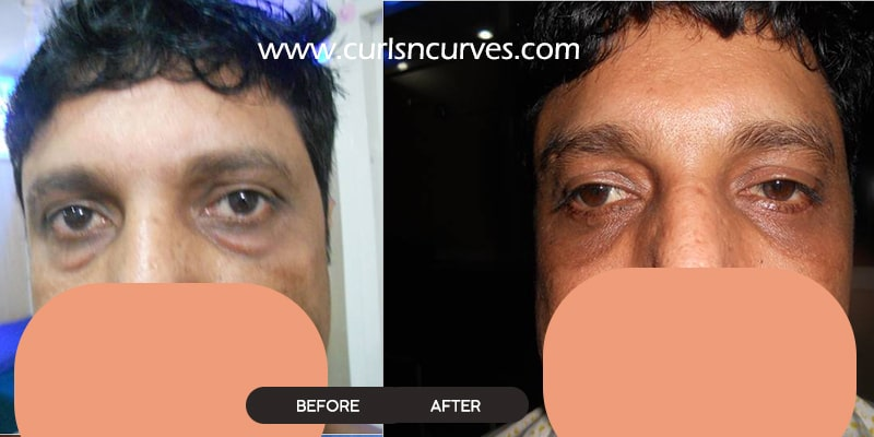 blepharoplasty cost in bangalore