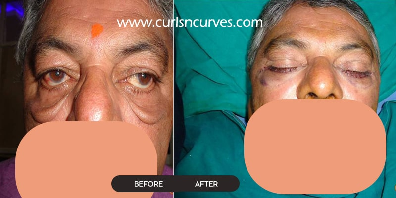 eyelid surgery in bangalore