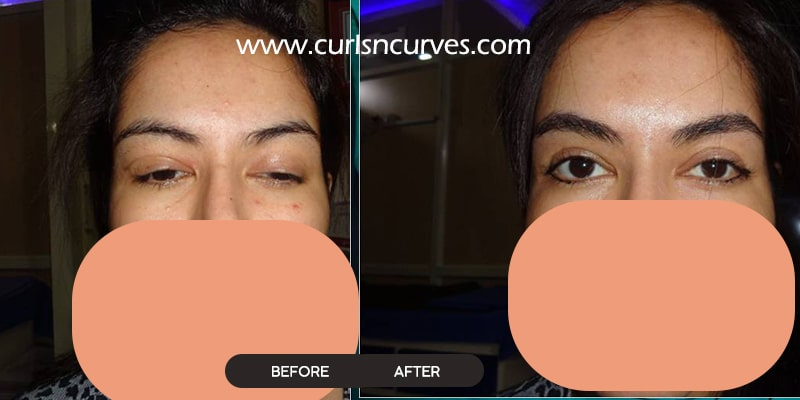 eyelid surgery cost in bangalore