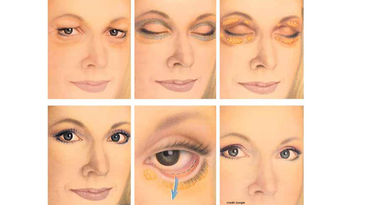 double eyelid surgery cost in bangalore