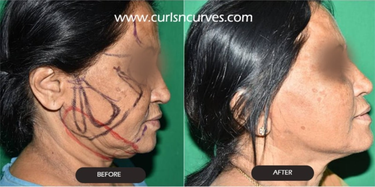 neck lift surgery cost in bangalore