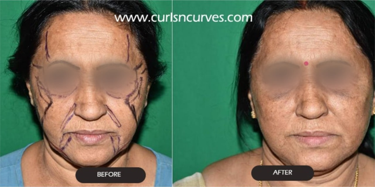 face lift price
