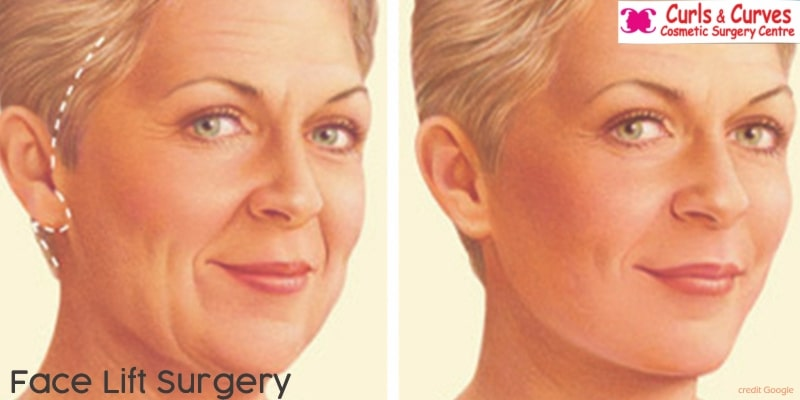 facelift surgery cost