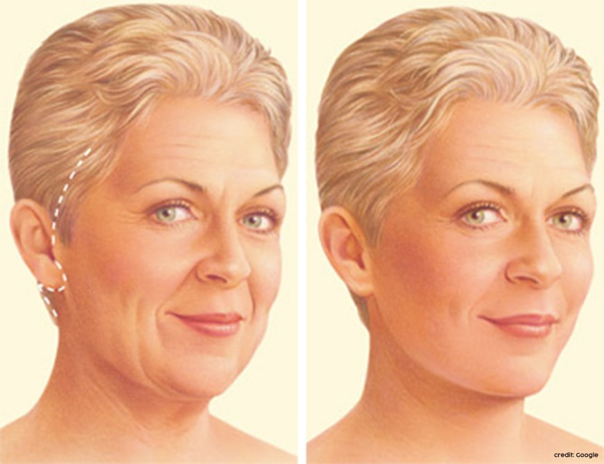 facelift surgery cost in bangalore