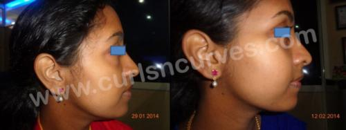 cosmetic neck surgery cost in bangalore