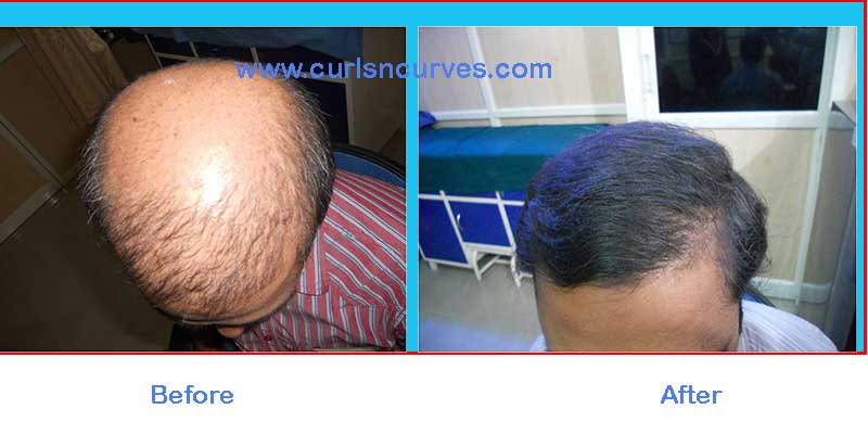 hair transplant fue cost