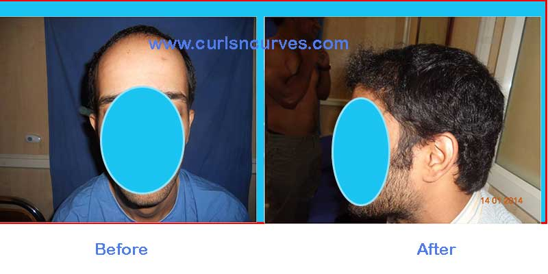 fue hair transplant cost in bangalore