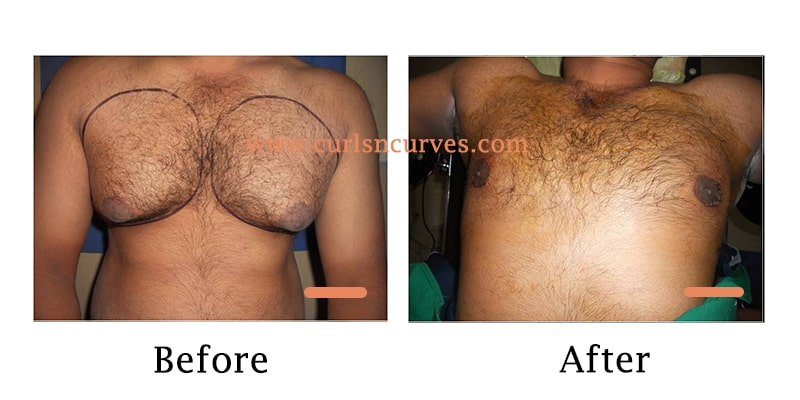 gynecomastia treatment in bangalore