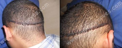 best fue hair transplant in bangalore
