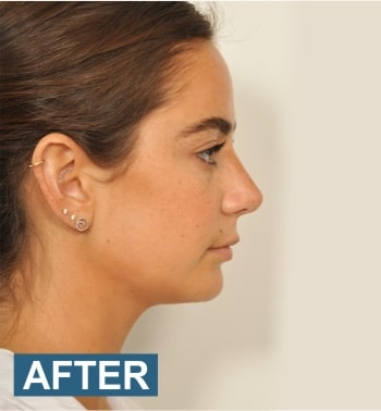 liposuction cost in bangalore