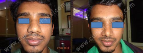 nose reshaping in bangalore