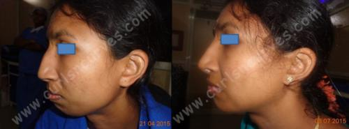 nose job cost in bangalore