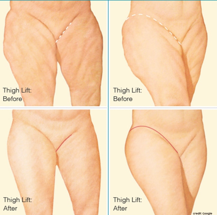 inner thigh fat removal surgery